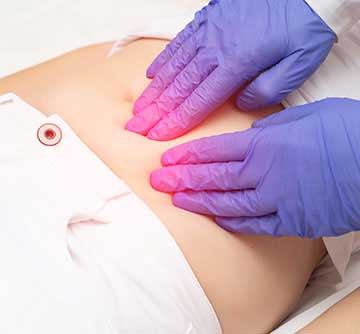 Fibroid Treatments